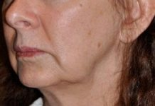 jowls-how to get rid of jowls