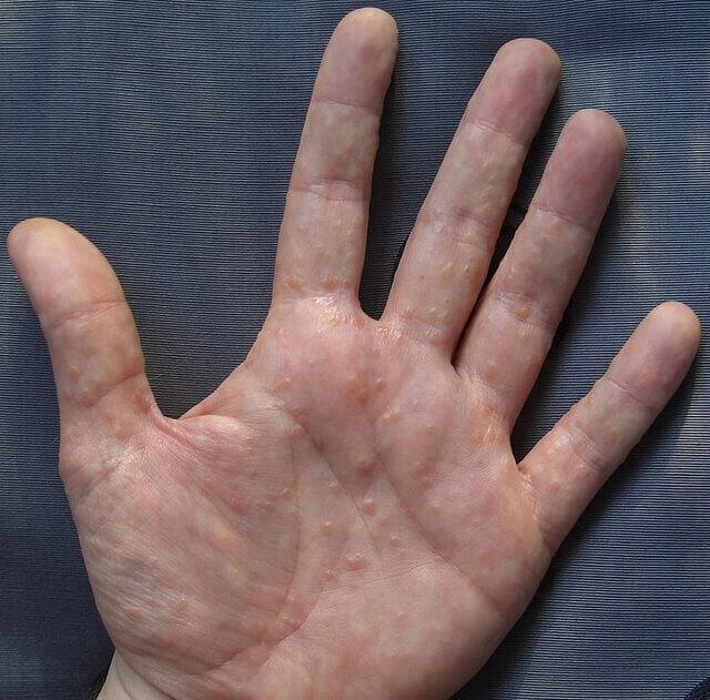 Small Itchy Bumps on Hands and Feet: Causes, Treatments, and