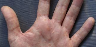 itchy bumps on hands