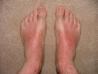sunburn on top of feet