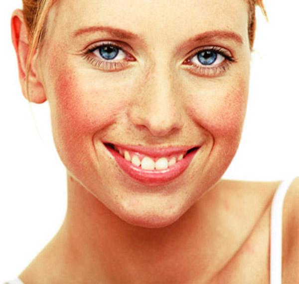 Facial redness
