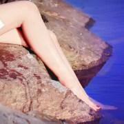 epilacja laserowa Beauty Skin