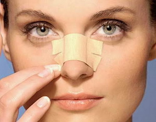Nose Cartilage Reshaping
