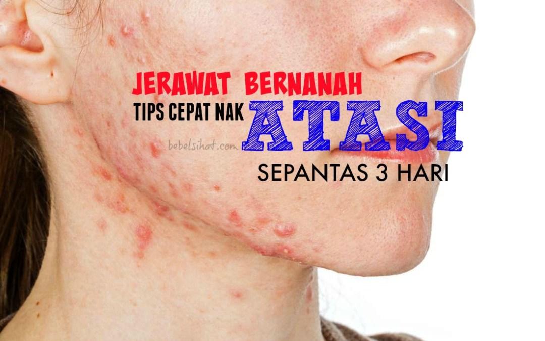 Jerawat Bernanah : Tips Cepat Nak Atasi Sepantas 3 Hari