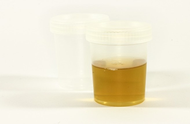 urine cup