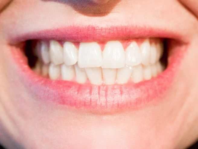woman with whitener teeth