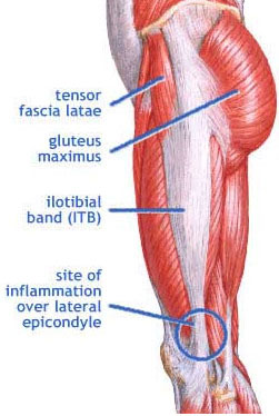 https://i2.wp.com/www.beginnertriathlete.com/cms/articleimages/1214/Iliotibial-band-syndrome.jpg