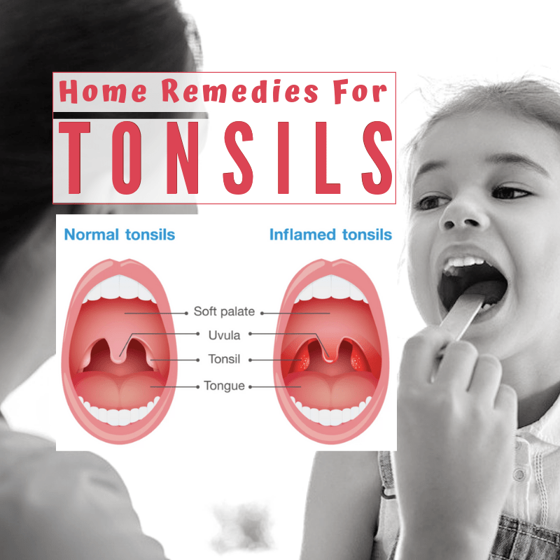 11 Home Remedies for Tonsils in 2020