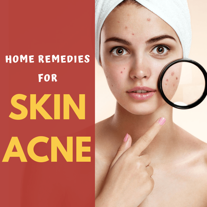 Home Remedies For Skin Acne