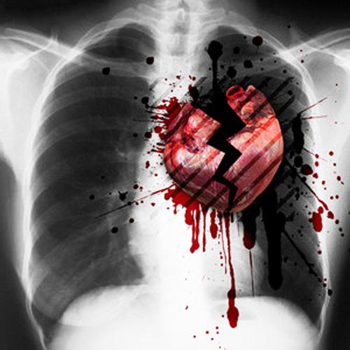 La Wlooo!!… Broken-Hearted Boys