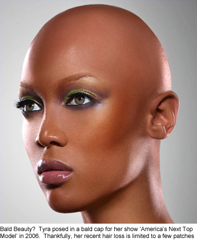 tyra banks affected by hair loss
