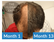 This Belgravia Centre Male Pattern Hair Loss Treatment Client Has Seen Significant Regrowth