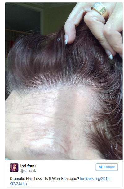 Wen Hair Products Prompt Law Suit From Women With Hair Loss
