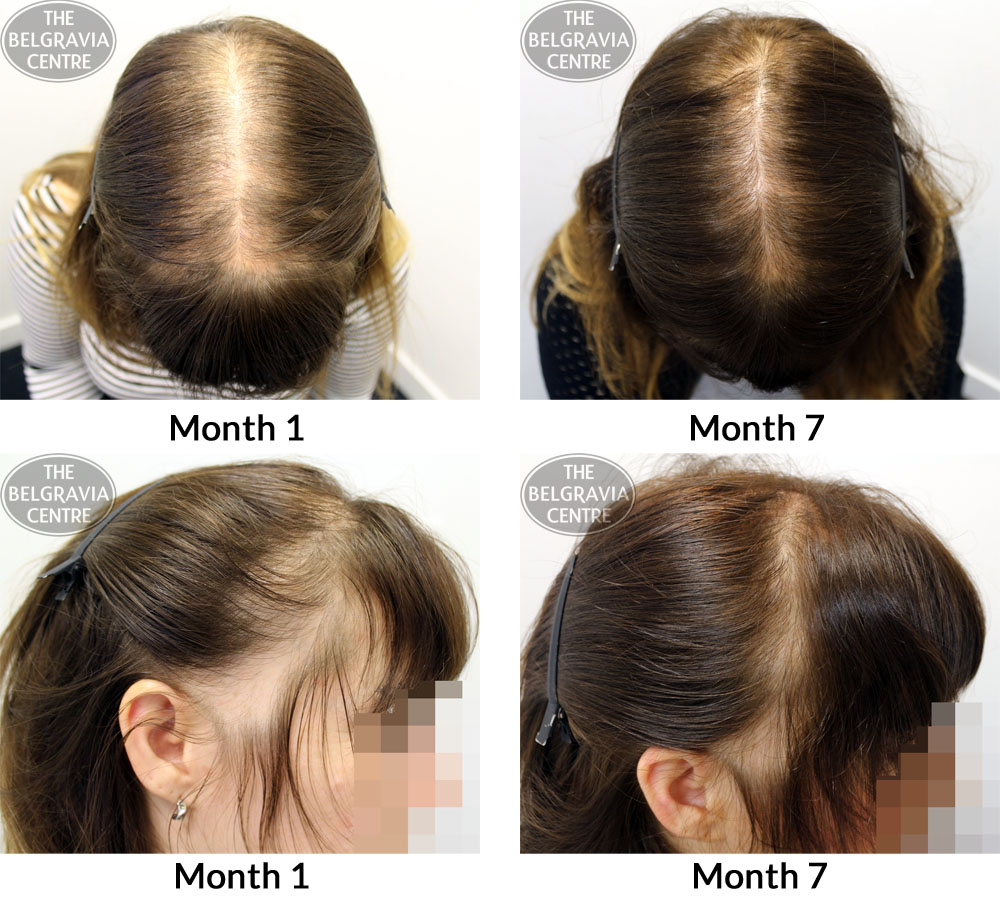 Hair Growth Success Remarkable Results Even In A Short
