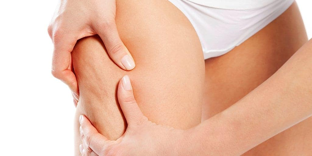 Kiss your cellulite goodbye - By Bellabaci Cupping