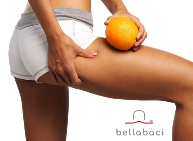 5 Causes of Cellulite You should Know about - By Bellabaci Cellulite Cupping Massage