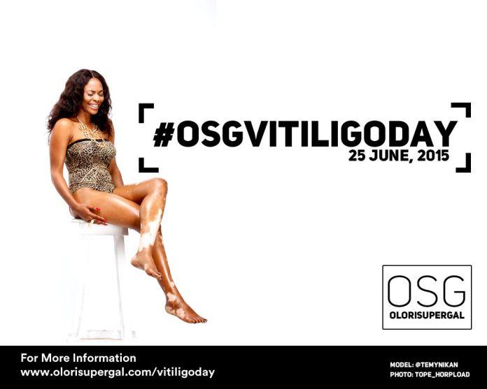 OSGVitiligoDay by Tosin Ajibade of Olori SuperGal - BellaNaija - June2015001 (2)