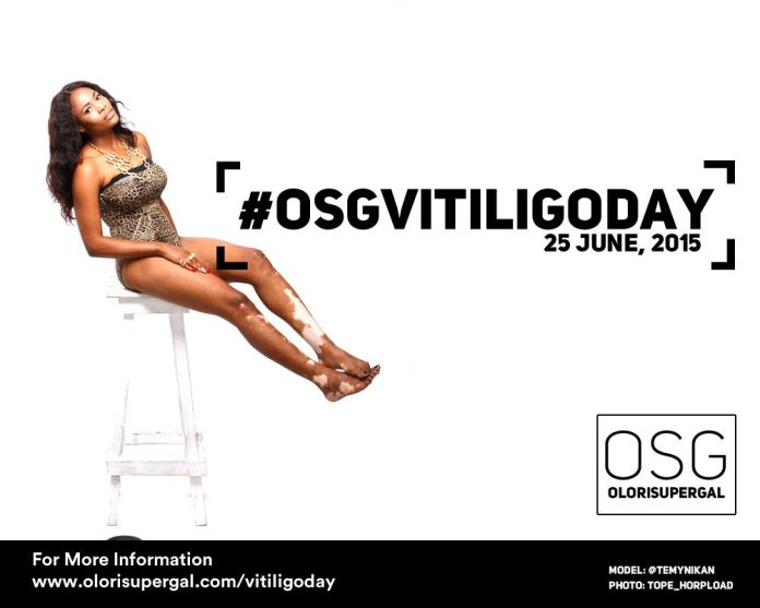 OSGVitiligoDay by Tosin Ajibade of Olori SuperGal - BellaNaija - June2015001 (8)