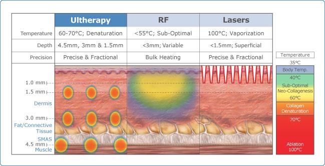 Comparativa Ultherapy, Radiofrecuencia, Laser