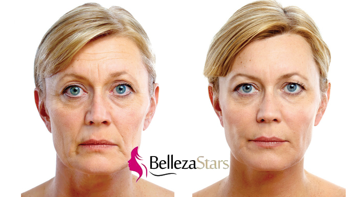Bio Current Face Lift