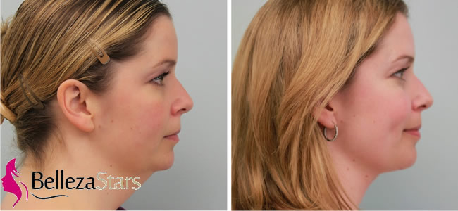 Double Chin Reduction & Jawline Definition Treatment