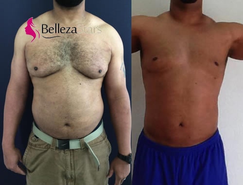 Male-Breast-Reduction