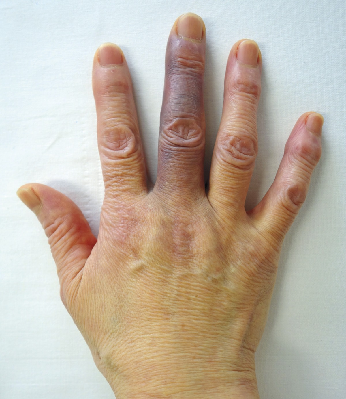 What Causes a Finger Infection