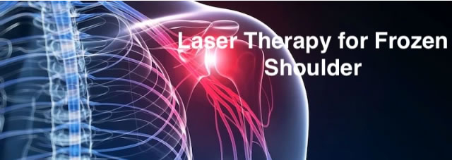 Low Level Laser Therapy for Frozen Shoulder