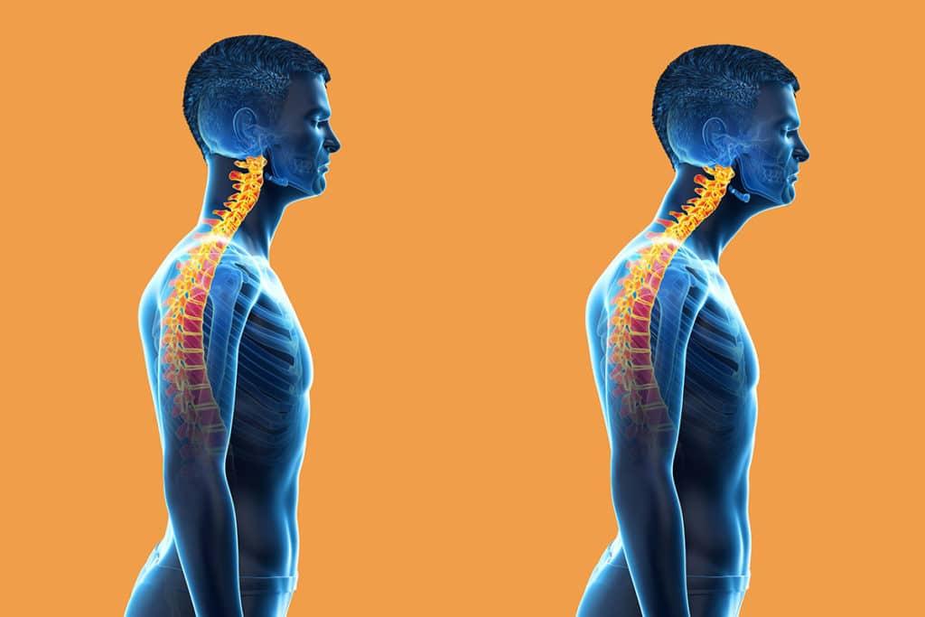 to fix forward head posture nerd neck
