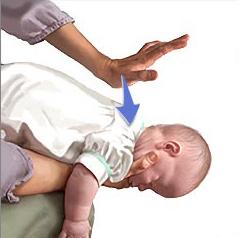 Manovra disostruzione pediatrica