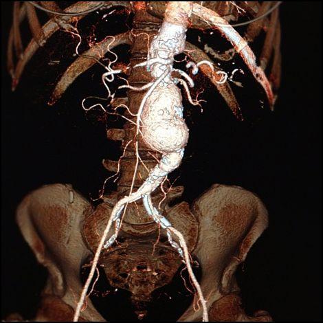 aneurisma_aorta_addominale_TC