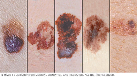 melanoma-auto-valutazione