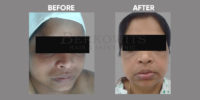 pigmentation and skin brightening before and after 1