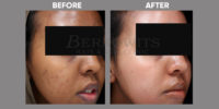 pigmentation and skin brightening before and after 3