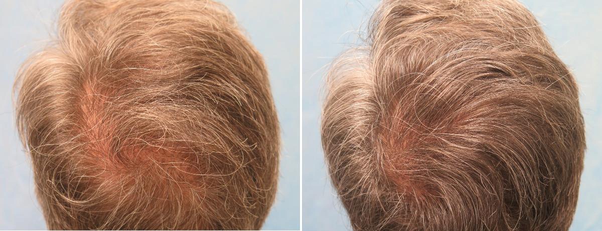 Scalp Dye For Thinning Hair