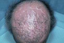 hair transplant scar repair fix scars bernstein medical