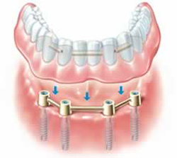 Bar Retained Denture San Jose