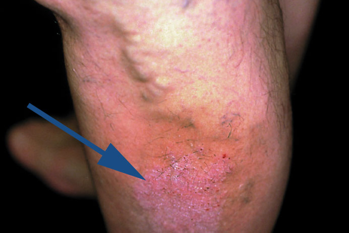 krampfadern und varizen folgeerkrankungen