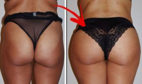 Buy Pmma buttock injections online