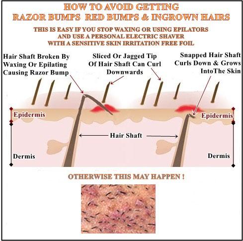 hair removal shaving blog