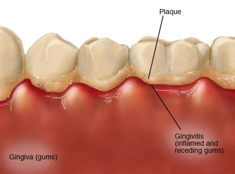 gingivitis information