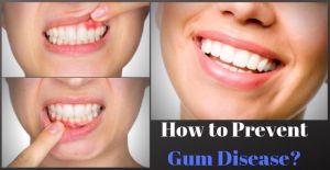 How to Prevent Gum Disease?