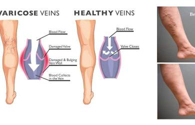 Effective and Natural Varicose Vein Treatment