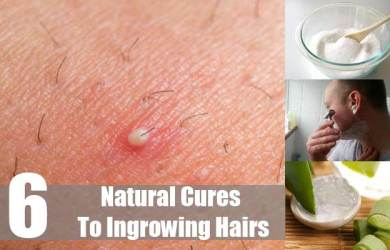 How to Get Rid of Ingrown Hairs Easy and Safely