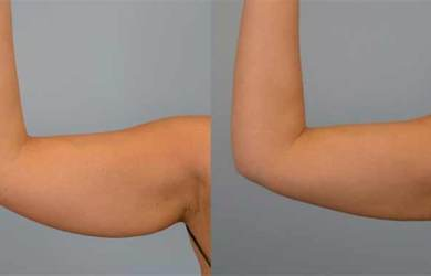 How to Get Rid of Flabby Arms - 4 Simple but Very Effective Exercises