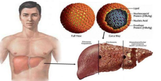 Image result for hepatitis b