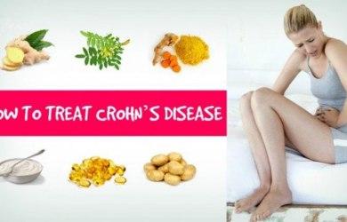 Treat Crohns Disease