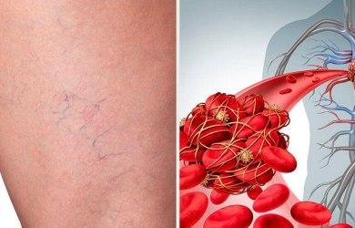 Phlebitis Prevention