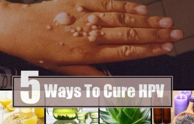 Home Remedies to Treat HPV Naturally
