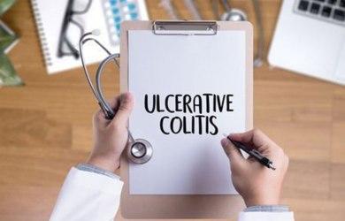 Treat Ulcerative Colitis Naturally